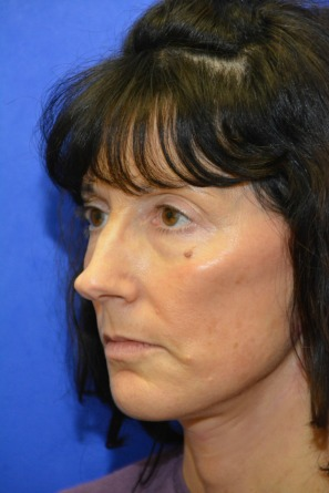 postsurgery (2)